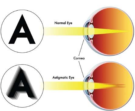 eyecare business - basics and beyond: astigmatism, Cephalic Vein